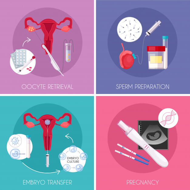 مراحل انجام IVF