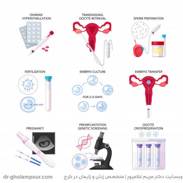 مراحل انجام درمان ناباروری به روش IVF
