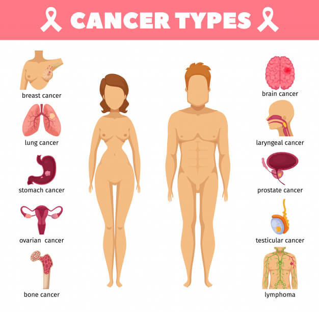انواع و اقسام سرطان